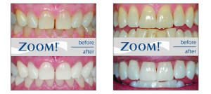 Zoom-Teeth-Whitening