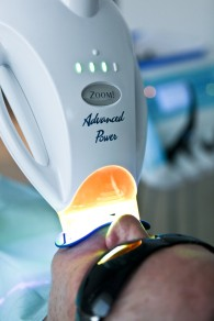 Teeth Whitening Bundall Gold Coast